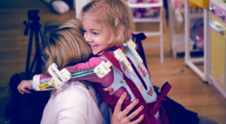3D Printing allows 2 year old Emma to reach new heights [VIDEO]
