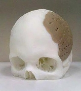 A skull implant like the one used in the operation